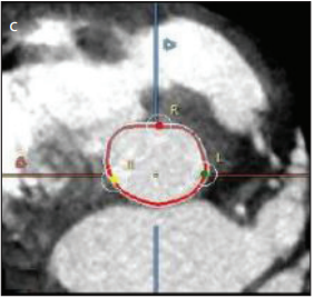 Multidetector Computed Tomography Angiography (MDCT) in the Pre-Procedural Assessment of Patients Undergoing Transcatheter Aortic Valve Replacement