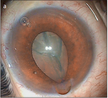 Bilateral Intraoperative Floppy Iris Syndrome Associated with Silodosin Intake